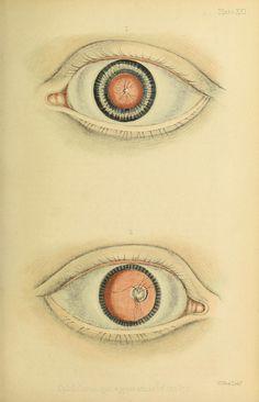 Blind Art, Medical Illustration, Anatomy, Steampunk, Alchemy, Prints, Workshop, Collage, Jokes