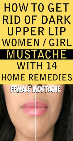 to Get Rid of Dark Upper Lip Shadow or Female Mustache - Lighten The Skin Fa. -How to Get Rid of Dark Upper Lip Shadow or Female Mustache - Lighten The Skin Fa. Beauty Care, Beauty Skin, Beauty Hacks, Beauty Tips, Diy Beauty, Beauty Products, Beauty Ideas, Homemade Beauty, Beauty Secrets