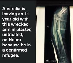 This is happening right now.   Our Australian Government sickens me.   Thanks to @lucyham for photo. #Nauru #auspol
