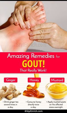 Natural Cures for Arthritis Hands - Home Remedies for Gout Arthritis Remedies Hands Natural Cures