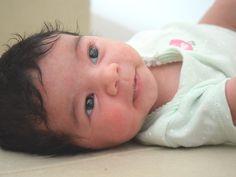 APLV - Alergia a proteína do leite - O que é? Como tratar? E nossa experiência com nossas filhas