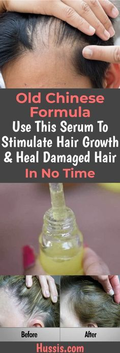 Old Chinese Formula Use This Serum To Stimulate Hair Growth & Heal Damaged Hair In No Time, . Old Chinese Formula Use This Serum To Stimulate Hair Growth & Heal Damaged Hair In No Time, Hair Growth Tips, Hair Care Tips, Diy Hair Growth Serum, Hair Growth For Men, Hair Loss Remedies, Hair Regrowth, Hair Follicles, Hair Loss Treatment, Bald Spot Treatment