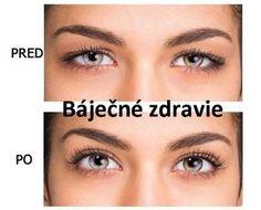 Prezradíme vám ako jednoducho odstrániť ovisnuté očné viečka a napnúť uvoľnenú pokožku! Homemade Beauty Tips, Diy Beauty, Beauty Hacks, Home Doctor, Body Mask, Handmade Cosmetics, Keto Diet For Beginners, Organic Beauty, Health Fitness