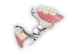 Excellent fitting, small and lightweight partial dentures.