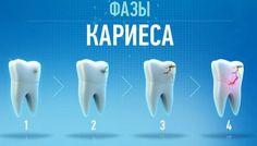 Сегодня мы поговорим о таком неприятном и опасном недуге, как кариес. Воздействие бактерий и сладкой пищи приводит к разрушению зубов. Вырабатываемые бактериями кислоты повреждают зубную эмаль, со временем разрушаются и внутренние ткани зуба, образуя полость(кариес). ✅ Самыми распространенными симптомами кариеса являются:  зубная боль  неприятный запах изо рта и странный привкус во рту  белые, серые, коричневые и черные точки на зубах  потеря чувствительности разрушение зуба или…