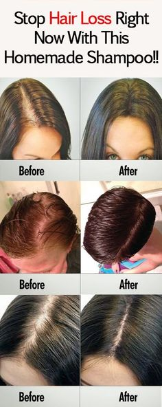 Tired of the chemicals in shampoos ruining your hair? Try this shampoo made with baking soda for better hair growth and better quality hair. Homemade Shampoo, Homemade Hair, Natural Hair Loss Treatment, Extreme Hair, Stop Hair Loss, Hair Repair, Beauty Hacks, Beauty Tips, Beauty Ideas