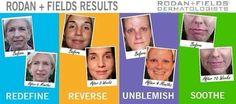 RODAN + FIELDS RESULTS