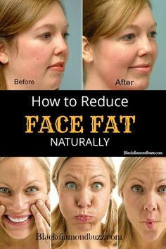 Do you want to lose weight in the face and get rid of double chin? Here are how to reduce face fat fast naturally at home.With these home remedies, exercises and yoga to lose face fat you will get toned face in a month.Try It !