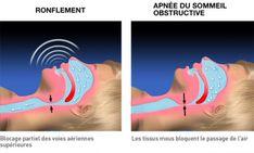 Un remède naturel contre le ronflement et l'apnée du sommeil