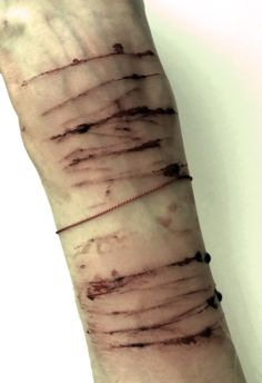 how to cut your wrist and not die