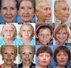 Woman's Way | Skin Care Tips