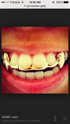 Gold top Grills with connective bar. I want this with a vertical bar down my gap. Fang Grillz, Girl Grillz, Mouth Grills, Grills Teeth, Gold Grill, Gold Tooth Cap, Gold Slugs, Body Jewelry, Lips