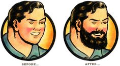 Why men are opting for beard transplants... Oh, that beard life.