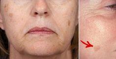 Un masque beauté naturel pour éliminer les taches brunes de vieillesse! 2 ingrédients seulement! - Trucs et Astuces - Trucs et Bricolages