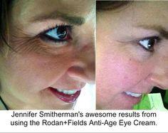 Check out our amazing eye cream! teamrachgorbutt.myrandf.com