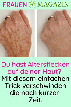Do you have age spots on your skin? With this simple trick, the . Mit diesem einfachen Trick verschwinden d… Do you have age spots on your skin? With this simple trick they disappear after a short time. Makeup Tricks, Beauty Makeup Tips, Beauty Make Up, Normal Hair Loss, Oil For Hair Loss, Roman Hair, Best Facial Hair Removal, Get Rid Of Warts, Natural Hair Loss Treatment