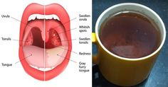 Strep throat is a bacterial infection caused by Streptococcus pyogenes or group A streptococcus, manifested by sores and swellings, and can be extremely un