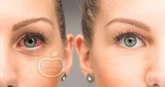 Botox Around Eyes Crows Feet Puffy Eyes, Red Eyes, Yellow Under Eyes, Castor Oil For Eyes, Castor Oil Benefits, Used Tea Bags, Itchy Eyes, Eye Wrinkle, Crows Feet