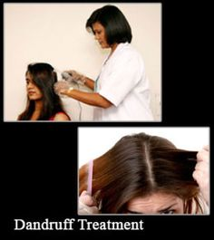 Natural Dandruff Remedies That Really Works