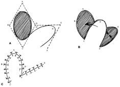 Fig. 6. Oval defect closed by transposition flap using rhomboid principles. A. Defect with rhomboid lines drawn for design of flap. B. Flap elevated. C. Closure.