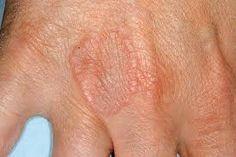 vintage ízületi kezelések ízületi fájdalom nagy lábujjgyulladás