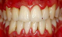 Periodontitis, or Gum Disease, is inflammation and infection of the ligaments and bones that support the teeth. Do you notice how the gums are red, puffy and swollen?  Dentaltown - Patient Education Ideas