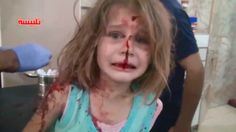 Powerful images of wounded Syrian girl go viral - CNN.com