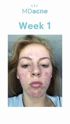 MDacne is an app that will scan your face and give you a full skin assessment. Then, based on that assessment, will send you a full acne treatment kit customized to your skin. Try it for FREE! Acne Skin, Acne Scars, Oily Skin, Acne Out, Cystic Acne Treatment, Natural Acne Treatment, Greasy Skin, Bad Acne, Acne Scar Removal