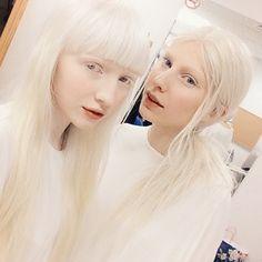 Ou cette femme à gauche, jeune mannequin. | 20 photos qui montrent une autre image de l'albinisme