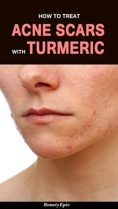 5 Easy Ways to Get Rid of Acne Scars Quickly with Turmeric