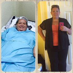 """Before and After Weight Loss Surgery Mexico Facilitated by Sheri Burke Performed by Dr. Sergio Verboonen in Cancun and Tijuana, Mexico. http://www.international-patient-facilitators.com/testimonials/bariatrics-testimonials 1-800-210-5124      Cirugías para perdida de Peso con Sheri Burke 01-800-681-8109 http://obesitysolutions.us/es/ 1-800-210-5124  #gastricsleevecancun #gastricsleevetijuana #gastricsleevemexico #drsergioverboonen #sheriburke #weightlossmexico #baritricsurgerycancun…"