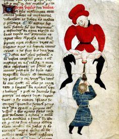 surgical procedure.John Arderne, De arte phisicali et de cirurgia, England ca. 1425. Stockholm, Kungliga biblioteket, X 118