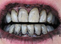 Wer träumt nicht von dem perfekten Hollywood-Lächeln mit schneeweißen Zähnen. Aber nur wenige Menschen haben es in den Genen, um solche weißen Zähne zu besitzen. Leider sind die Behandlungen, mit denen man dies erreicht nicht das Beste, was man seinen Zähnen antun kann. Die aggressiven Bleichmittel sind sehr chemisch und greifen den Zahnschmelz an! Aber …