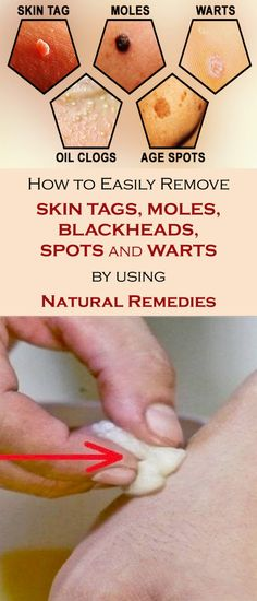 Natural Skin Remedies How to Easily Remove Skin Tags, Moles, Blackheads, Spots, and Warts with Natural Remedies Natural Home Remedies, Natural Healing, Natural Skin, Herbal Remedies, Natural Foods, Cold Remedies, Holistic Healing, Skin Tags Home Remedies, Home Remedies For Warts