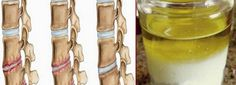 Are you suffering from osteoporosis or Osteochondrosis? Here is a natural remedy that has always been in there in your kitchen that can give you relief from the pain. It will also prevent the pain from returning for the long term. Home Health, Health Tips, Health And Wellness, Health And Beauty, Health Benefits, Herbal Remedies, Health Remedies, Home Remedies, Arthritis Remedies