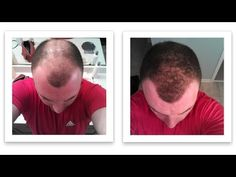 Breakthrough in Hair Loss Research
