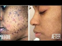 The Might Be The Best Spot Treatment Tutorial For Brown Skin on The Internet! | Essence.com