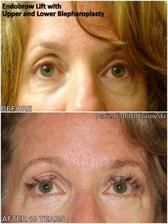 Eyelid Surgery, 10 Years