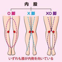 「足の曲がりを治す方法」の画像検索結果