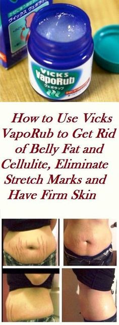 How to Use Vicks VapoRub to Get Rid of Belly Fat and Cellulite, Eliminate Stretch Marks and Have Firm Skin