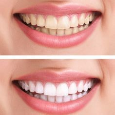 Teeth whitening in Dubai is the specialty of Lookswoow dental clinic. Visit our state of the art clinic in Dubai Mall and start living a smiling life. Beauty Make Up, Diy Beauty, Beauty Hacks, White Teeth, Hygiene, Teeth Whitening, Dentistry, Health And Beauty, Makeup Tips