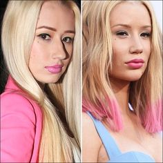 Iggy Azalea Admits to Having a Nose Job – Plus More Celebrities Who've Owned Up to Their Plastic Surgery Iggy Azalea gibt zu, einen . Nose Plastic Surgery, Botched Plastic Surgery, Celebrity Plastic Surgery, Nose Surgery, Iggy Azalea, Lip Job, Dental Veneers, Celebrities Before And After, Hollywood Gossip