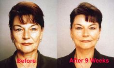 Facial Exercise for a Younger Face #facialexercise #facialmagic