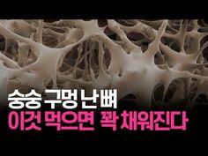 숭숭 구멍 난 뼈 이것 먹으면 꽉 채워진다 - YouTube