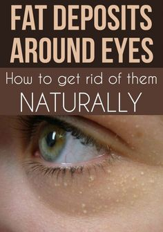 Fat deposits around the eyes. How to get rid of them naturally