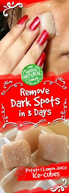 I am Shocked It Removed My Dark Spots in 3 Days, Potato & Lemon Juice Ice-cubes – Healthy Natural Family Health Tips For Women, Health And Beauty, Health Advice, Health Care, Women Health, Face Health, Mental Health, Diy Skin Care, Skin Care Tips