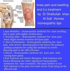 Holistic Tips And Techniques For holistic practitioner health Holistic Remedies, Homeopathic Remedies, Health Remedies, Alternative Health, Alternative Medicine, Holistic Practitioner, Homeopathy Medicine, Knee Pain, Acupressure