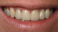 Direct Bonding and Veneers : This patient had always felt that his teeth were small and he hated the gaps between them. He wanted a fuller, natural looking smile. He wanted to be able to smile with confidence. Using a combination of direct bonding and veneers, he was given a smile that exuded confidence. He is so happy with the results! http://www.rankipedia.com/dentist/beforeafterajax