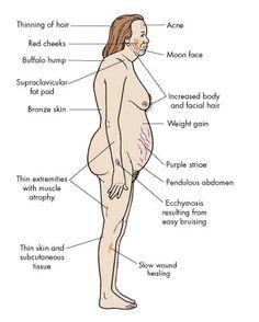 Características Sindrome de Cushing