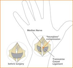 Diagram of carpal tunnel surgery